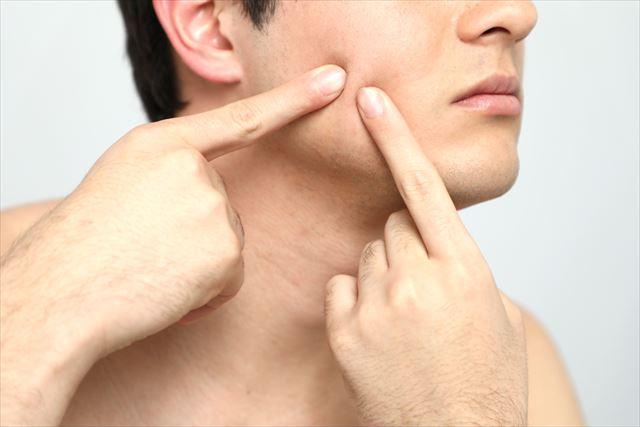 乾燥肌に悩む男性の画像