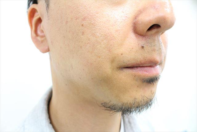 バルクオム化粧水の使用レビュー画像3
