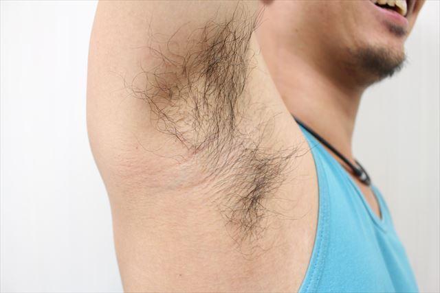 Nullリムーバークリームを使って脇毛除毛する画像4