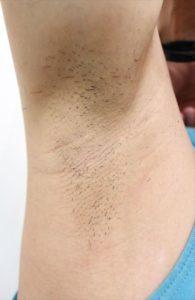 Nullリムーバークリームを使って脇毛除毛する画像29
