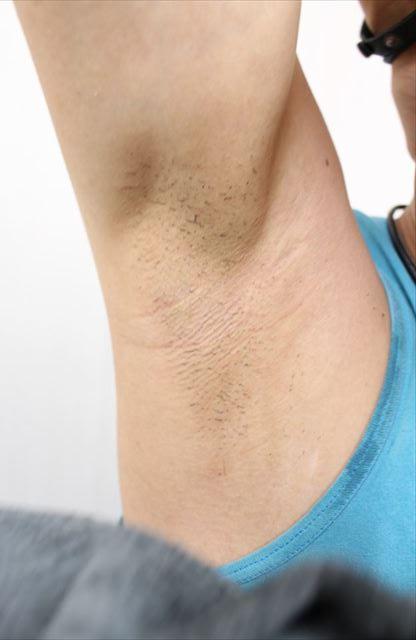 Nullリムーバークリームを使って脇毛除毛する画像31