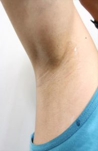 Nullリムーバークリームを使って脇毛除毛する画像41