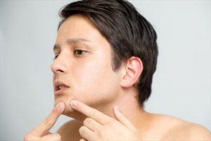 敏感肌の男性の顔画像