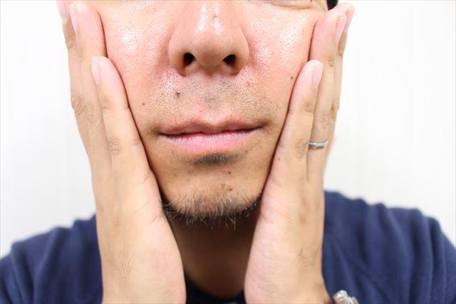 ニキビジェル薬用DE NIRO(デニーロ)を使用している画像2