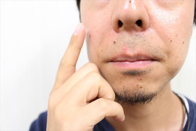 ニキビジェル薬用DE NIRO(デニーロ)を使用している画像6
