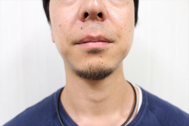 ニキビジェル薬用DE NIRO(デニーロ)を使用している画像10
